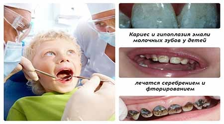 Зачем детям серебрить зубы